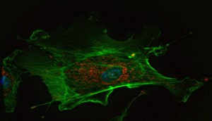 fluorescence image of a stained endothelial cell from wikipedia